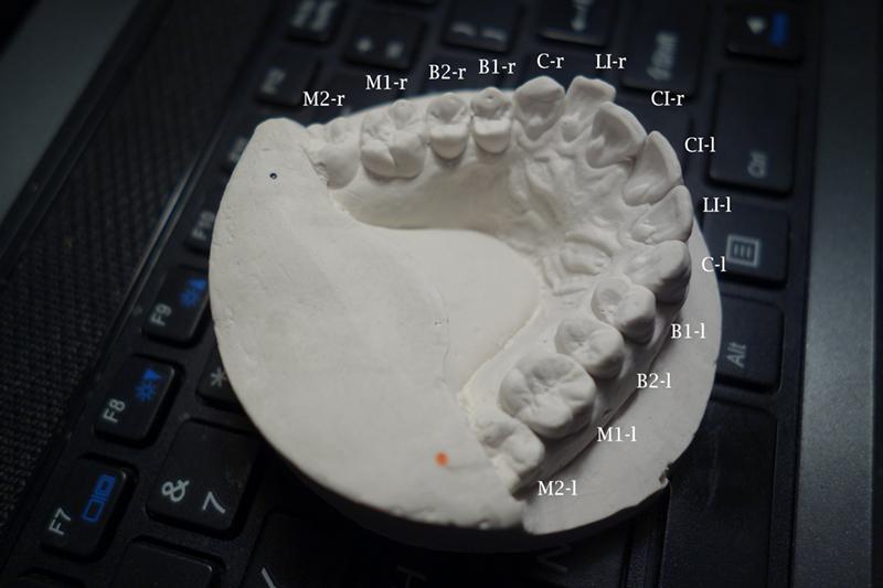 歯の鋳物で歯並びを確認