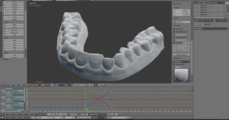 歯の鋳物をスキャンした画面
