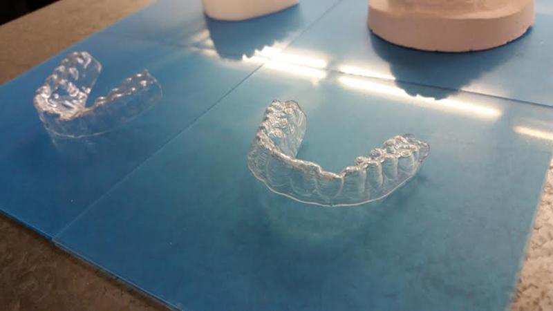歯の鋳型を使って作った矯正器具