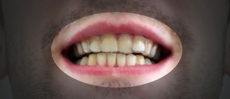 矯正前の歯