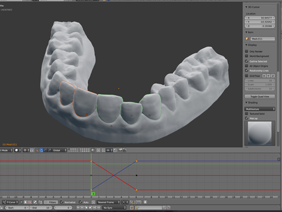歯の鋳物を作ってスキャン