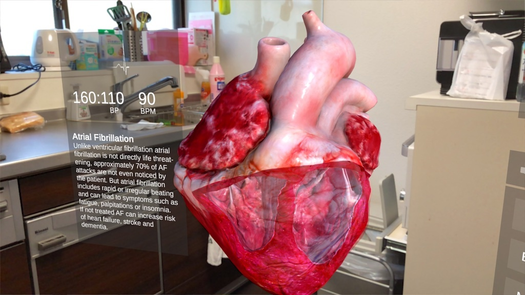 ARKit対応アプリ「INSIGHT HEART」