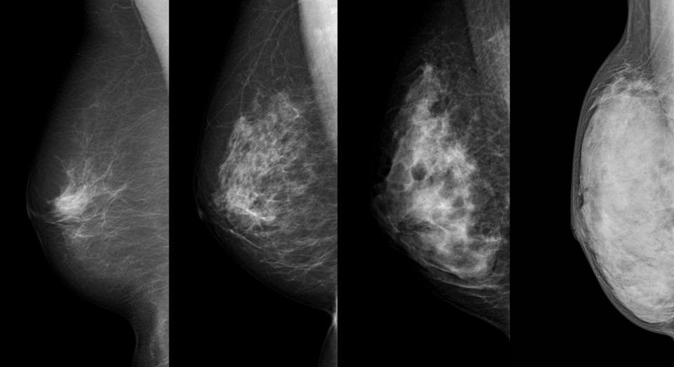 高濃度乳房画像