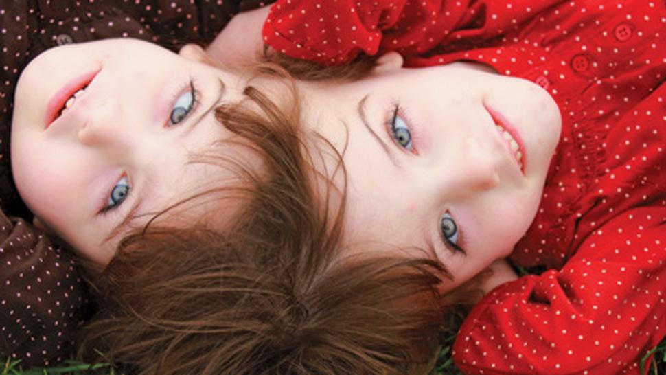 双生児 結合