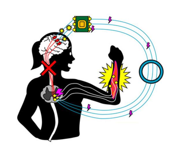 「人工神経接続」で、麻痺した腕を動かせるようにする実験成功!
