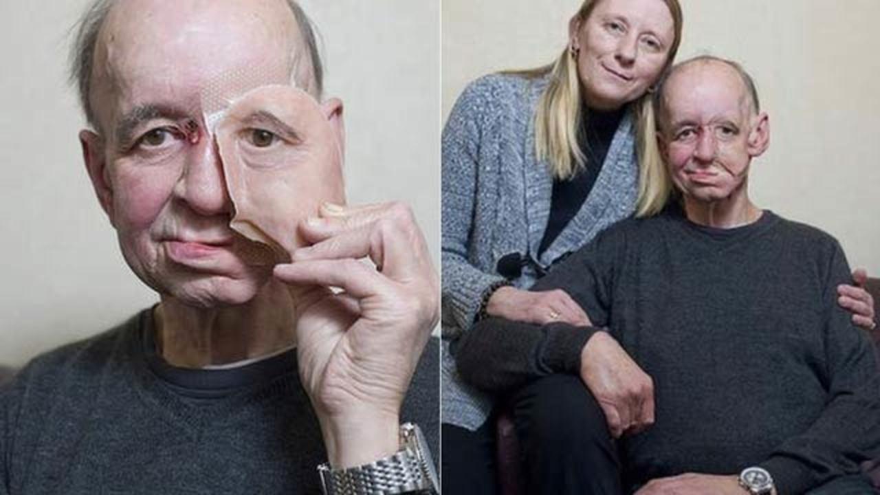 3Dプリンターによって顔と生活を取り戻した男の話