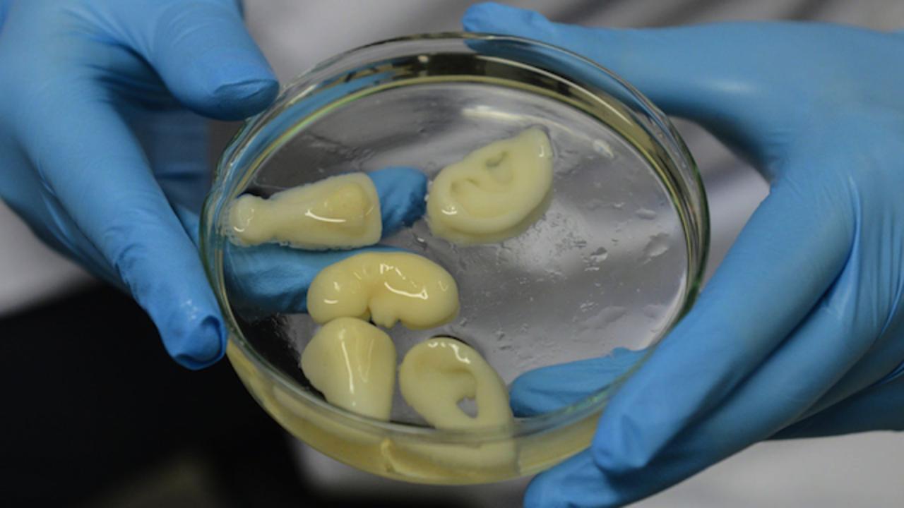 移植可能な腎臓を3Dプリントすることに成功! 中国の研究者が開発