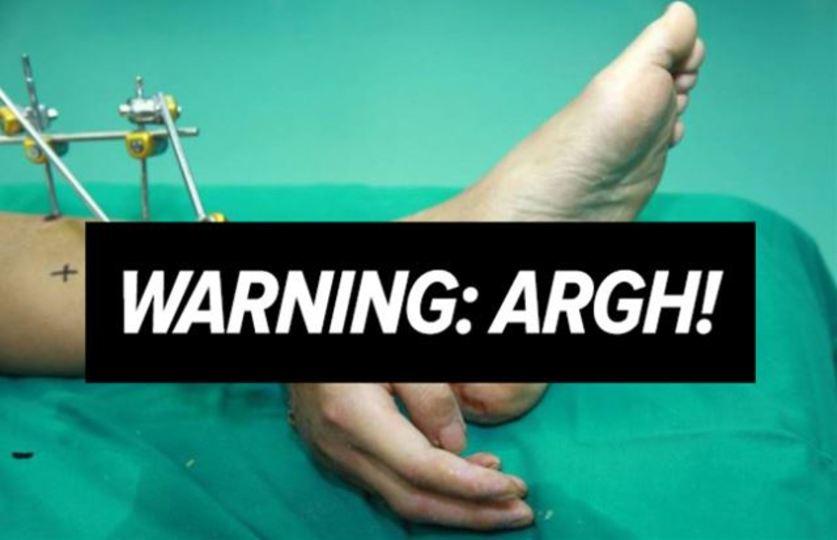 【閲覧注意】グッジョブ! 切断された手を足首で温存して移植に成功