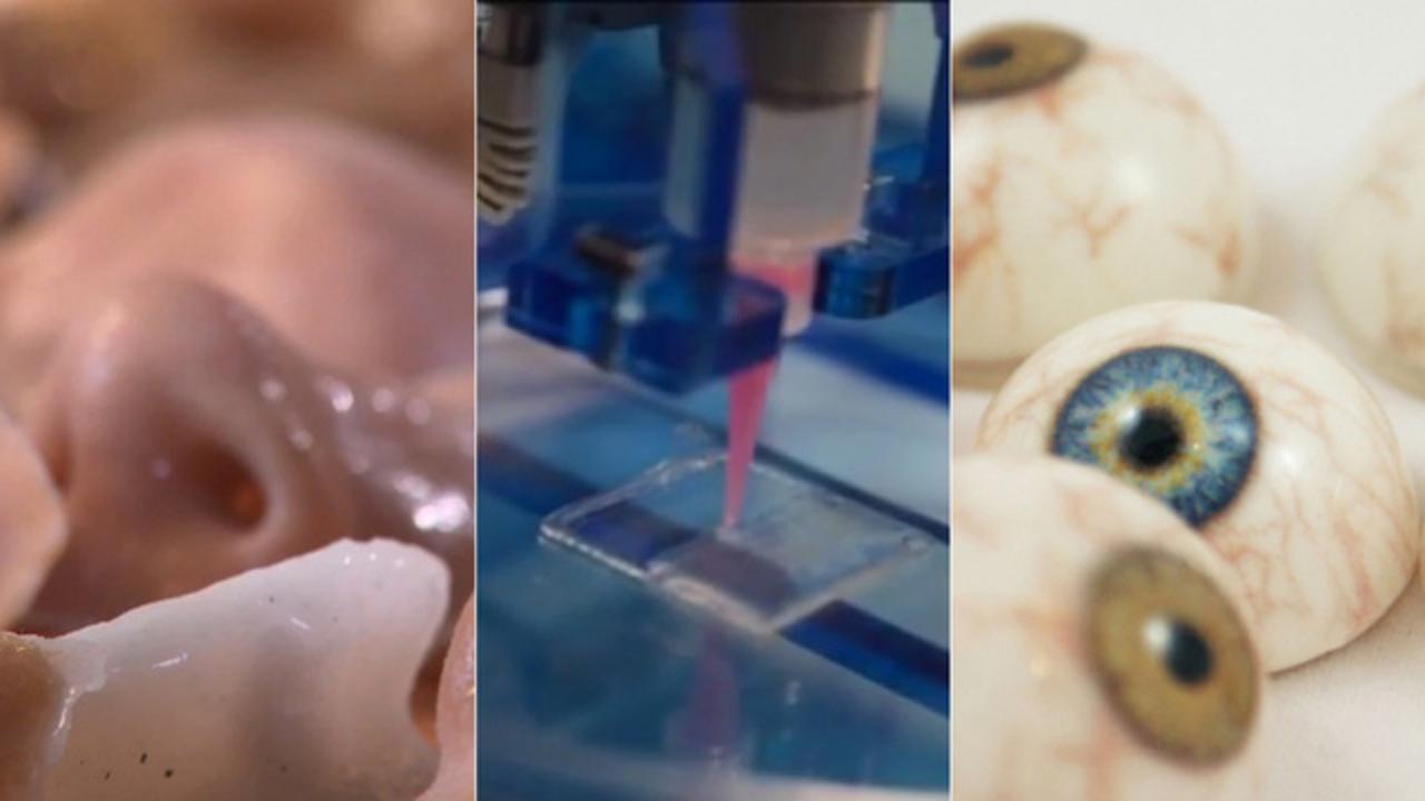 医療用3Dプリンターのテクノロジーのいま、どうやって目や骨や血管をプリントしているの?(動画あり)