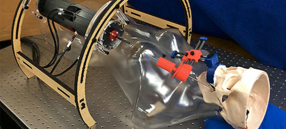 海馬手術用の新ロボット開発、頬からの手術が可能に