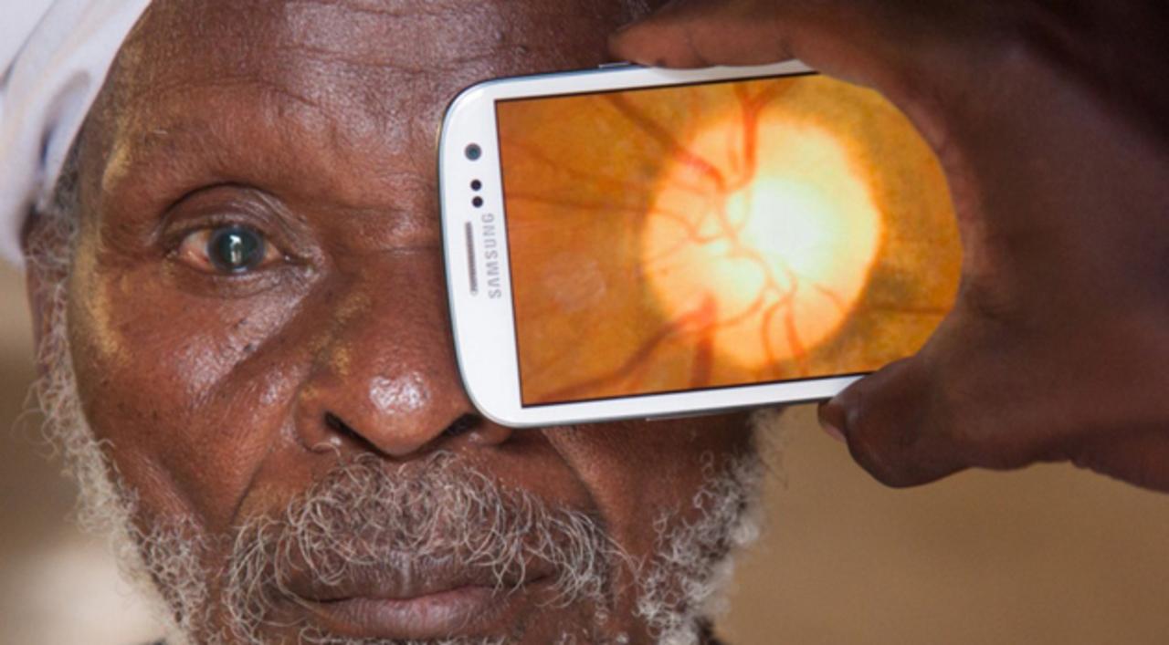 これぞ医療イノヴェーション。スマホで目の検査ができる「Peek」