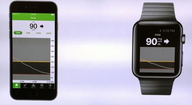 150210apple_watch02.jpg