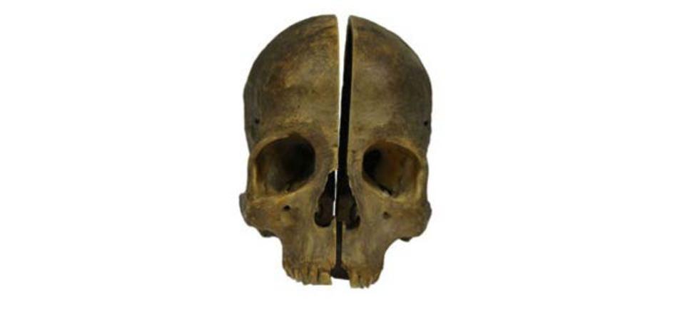 パッコーンと頭蓋骨真っ二つ