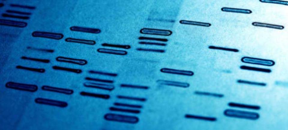 家でできるDNA検査、特定遺伝子疾患の検査キットが米国で販売承認へ