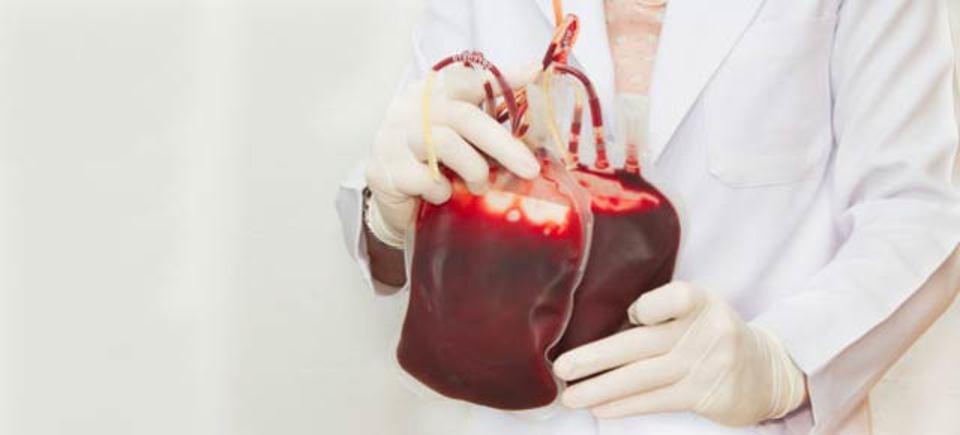 輸血申請の数が減ると死亡率も減少していくらしい