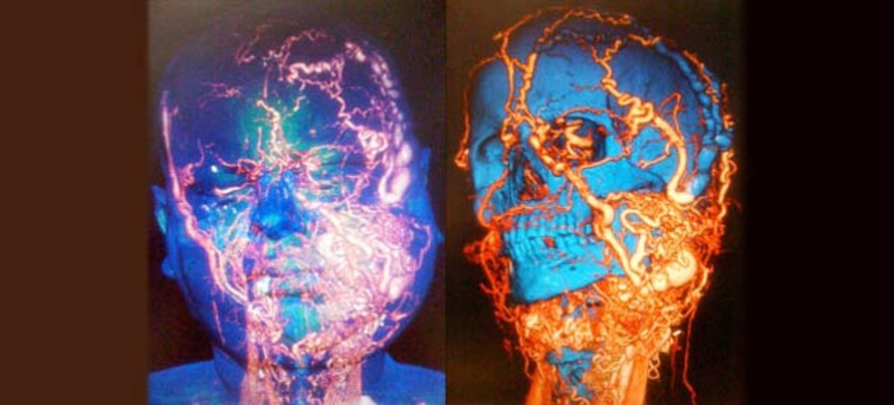 顔の大部分を再構築、世界一困難と言われた顔面手術