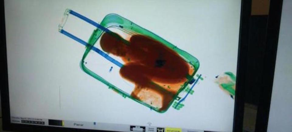 スーツケースに入って密入国した子供が発見される