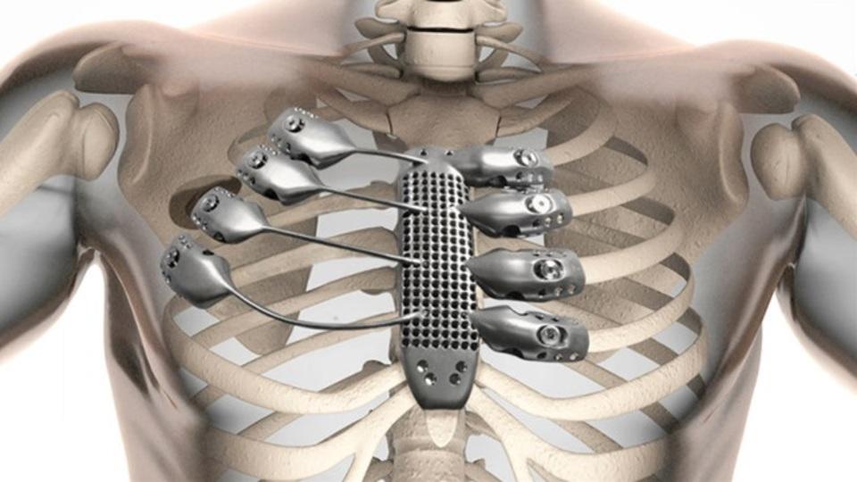 義体化きた! 世界初3Dプリントのチタン胸郭移植に成功