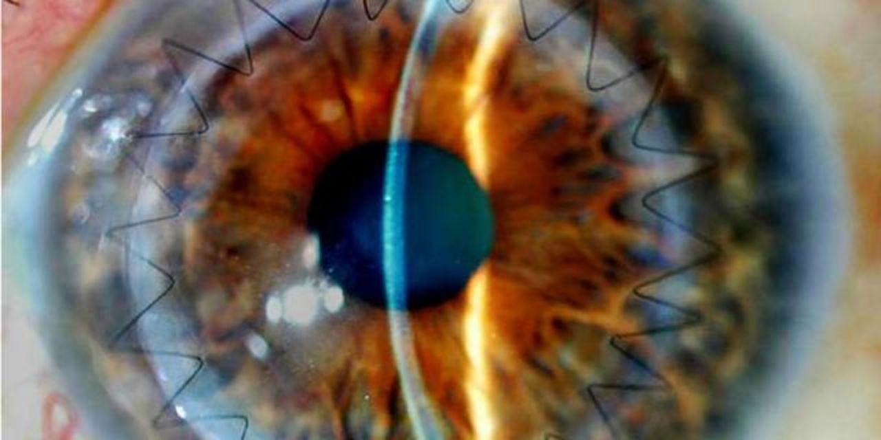 目から脳が見える。神経外科疾患の早期発見に新手法