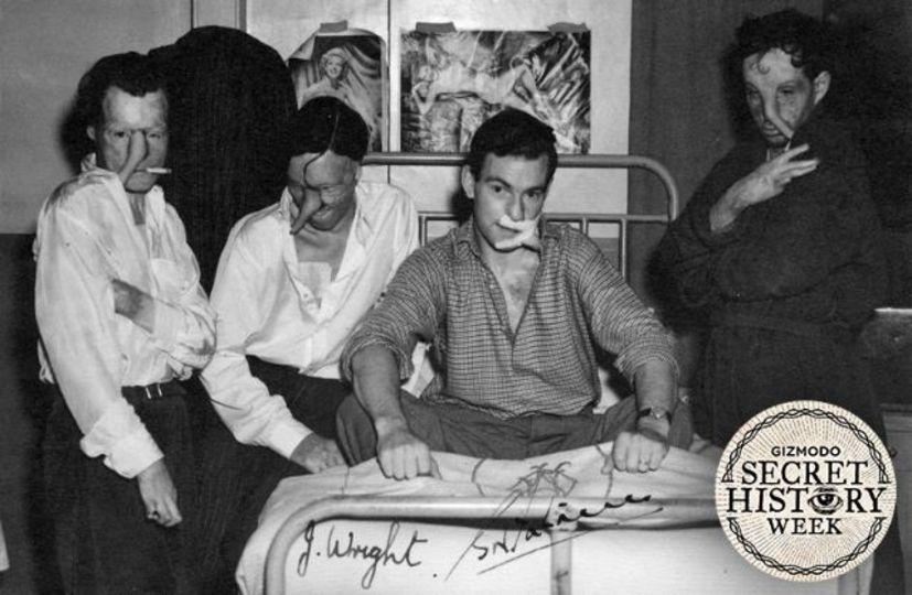火傷の兵士の顔を再建、心も癒やした第二次世界大戦中のクラブとは