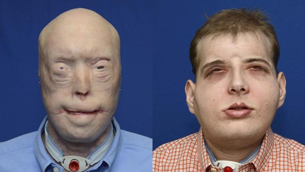 失った顔を再生する、史上最高に複雑な顔面移植手術が成功