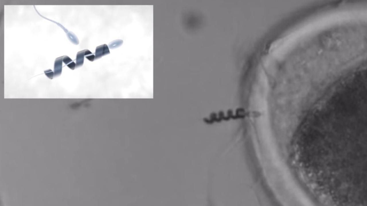 不妊治療に新たな光。動かない精子にモーターを取り付けて運ぶことに成功
