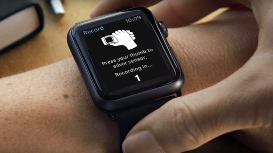 Apple Watchでついに心電図を測れるようになるか。AliveCoreのKardiaが今春発売を目指す