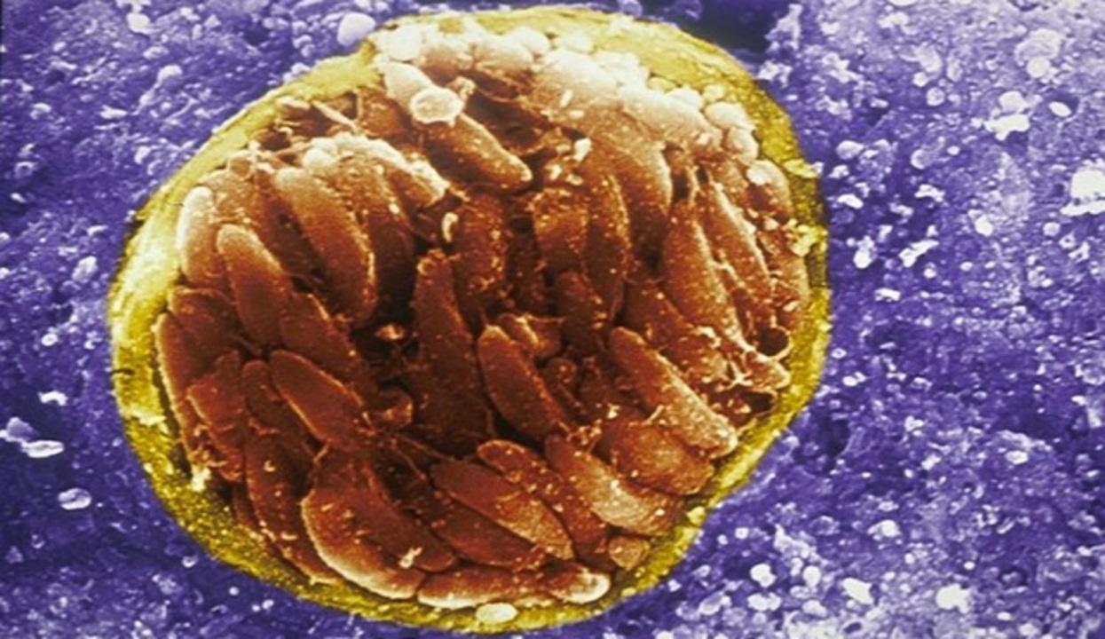 突然キレる人は猫の寄生虫トキソプラズマ感染率が通常の倍