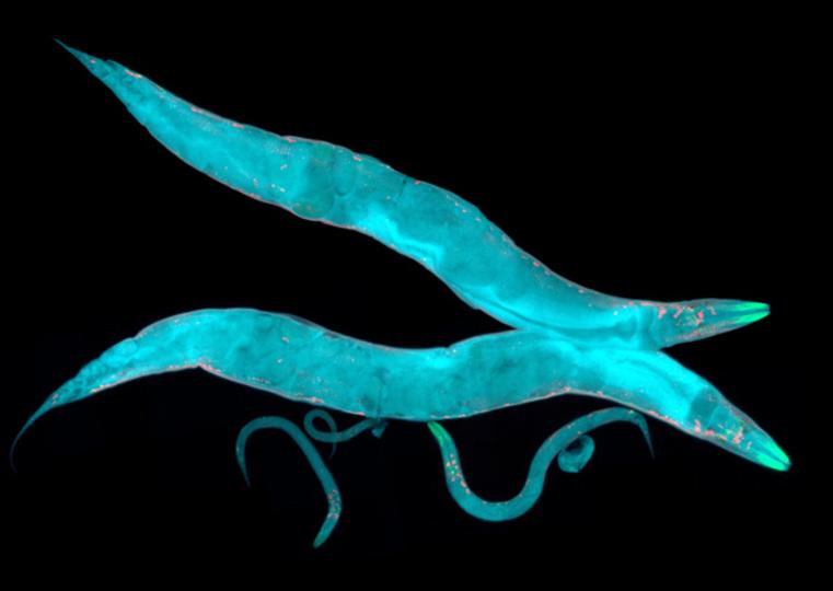 がんの有無を95.8%発見するのに必要なのは「尿1滴」と体長1mmの「◯◯」