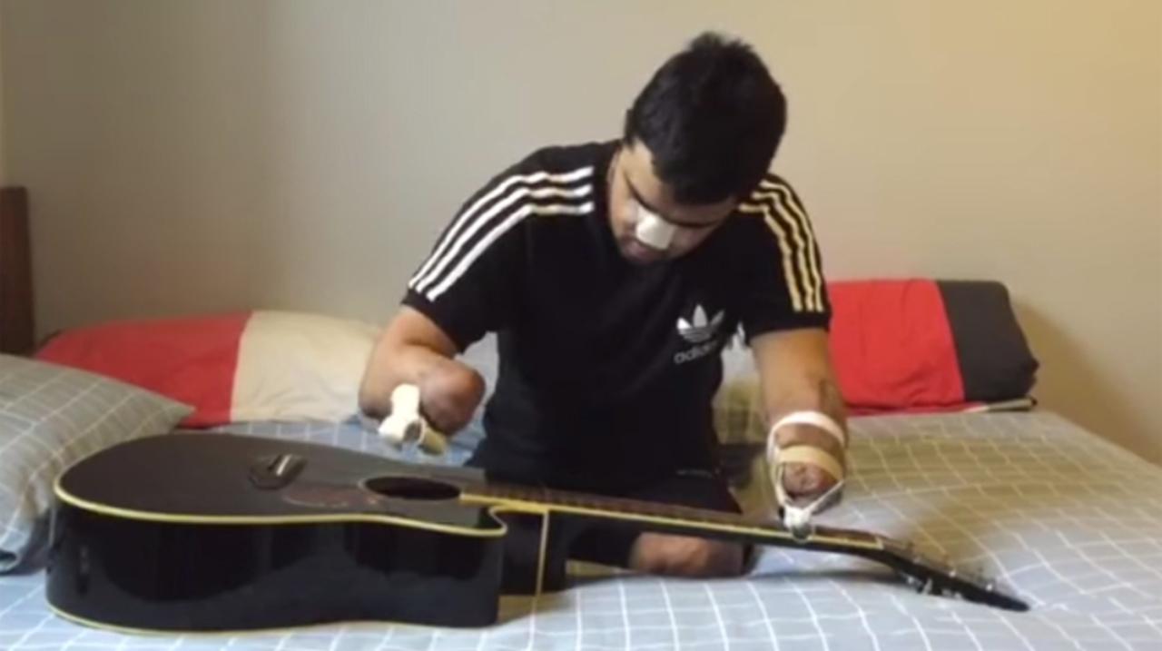 両手両足を失ってもギターを弾き続ける青年