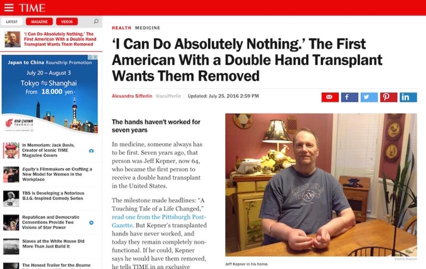 アメリカで初めて両手移植を受けた男性が義手に戻したいと希望