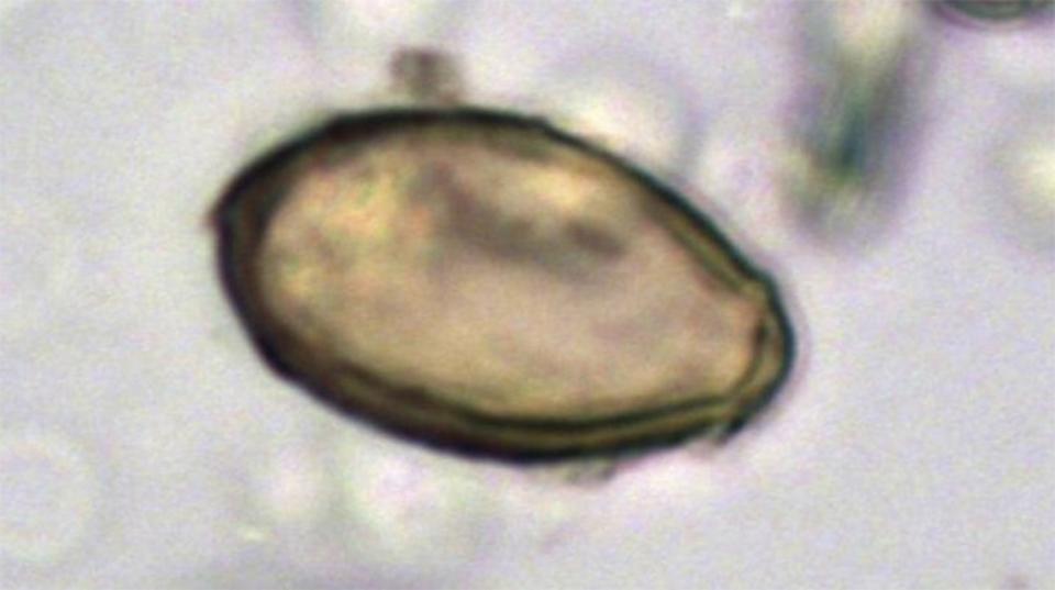 病原菌の広がりを知る鍵となるのは…ご先祖さまの「うんち」