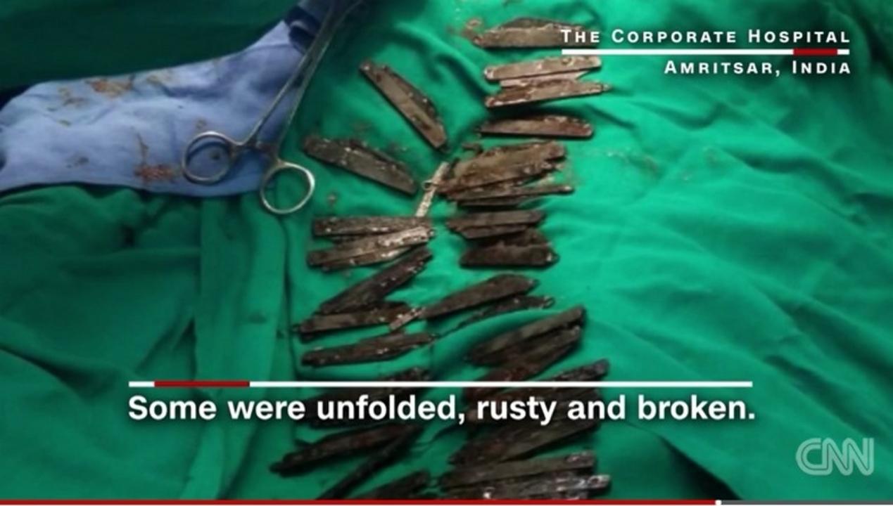 どうしてこうなった…。腹痛を訴える人の胃を開いてみたら、40本のナイフが出てきた