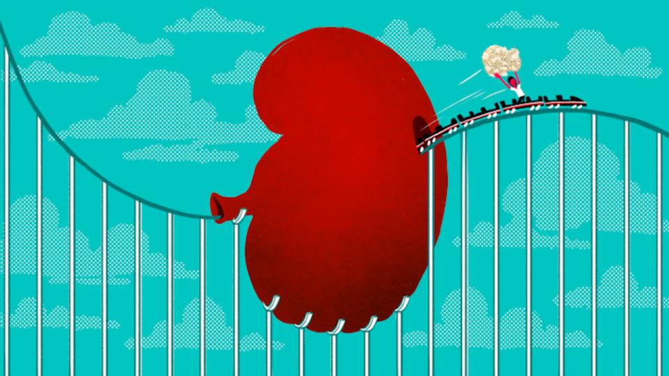ジェットコースターで腎臓の石がスッと出る、という研究