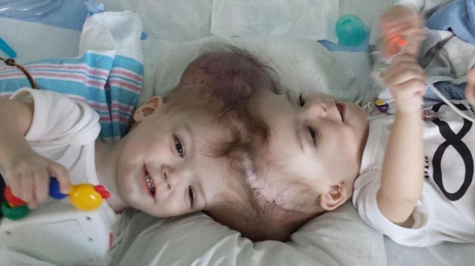 頭部が結合して生まれた双子の赤ちゃん、分離手術が成功!
