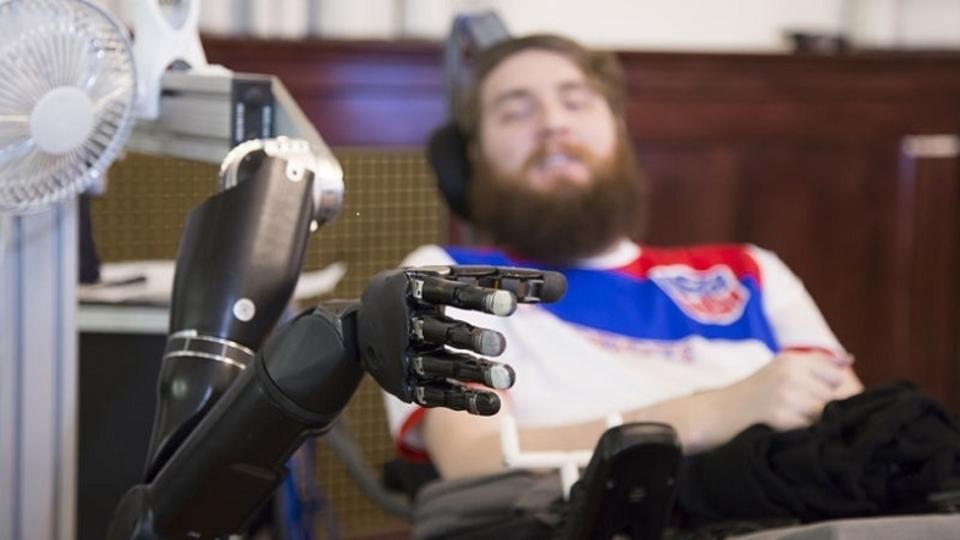 ロボットアームを脳とつなげて、失われた手の触覚を取り戻すことに成功