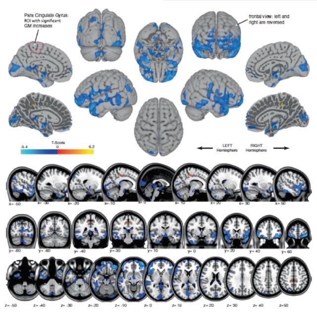 1 宇宙空間で脳や遺伝子はどう変化? NASAや大学から意外な研究結果