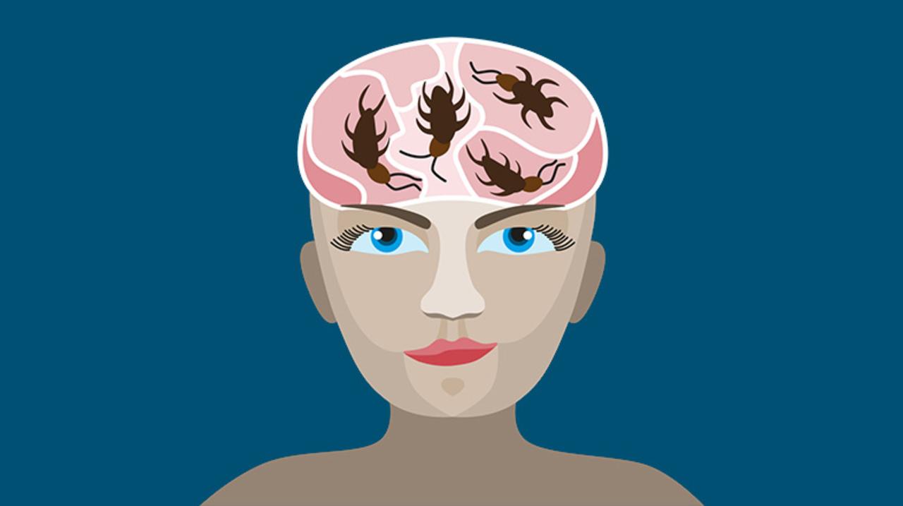 【閲覧注意】女性の頭部に入り込んだ「生きたゴキブリ」摘出される