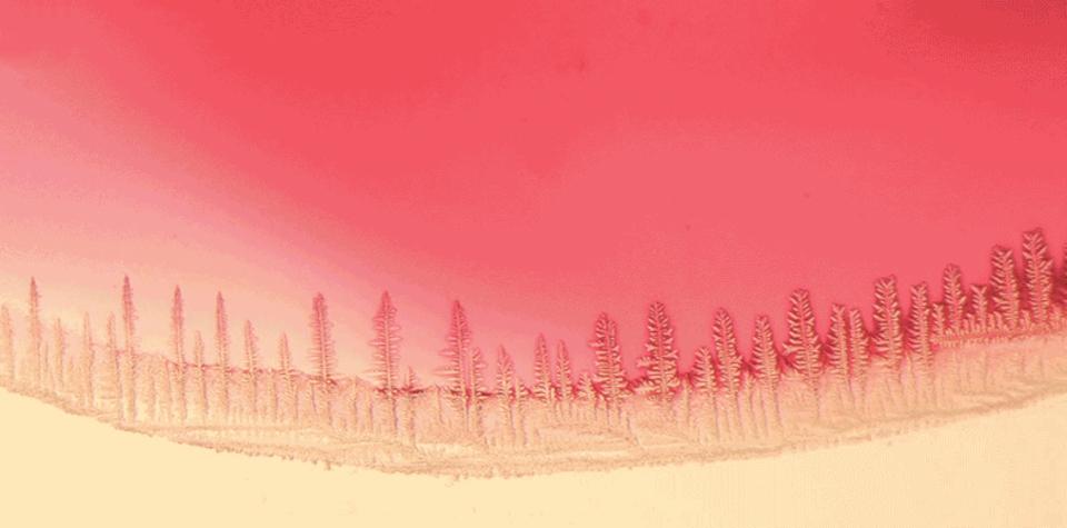 顕微鏡でのぞく小さな小さな赤い森