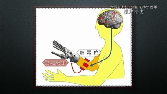 「人工知能を備えた義手」でめざすバリアフリー。脳と機械の融合はもう始まっています02