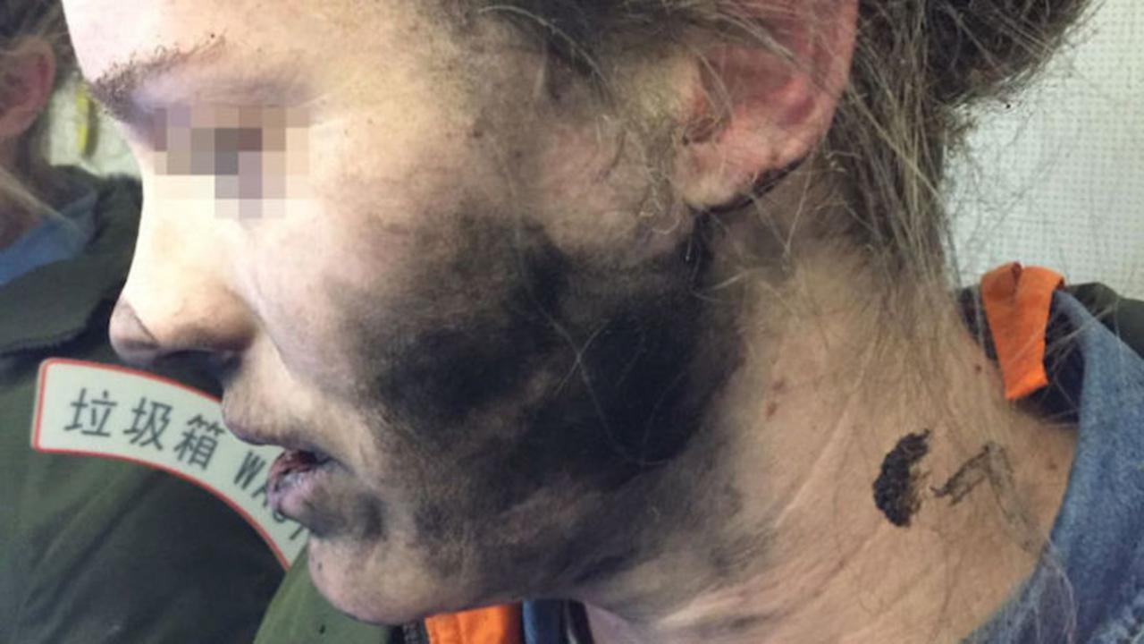 今度は機内でヘッドホンが爆発…女性のすす汚れが痛々しい