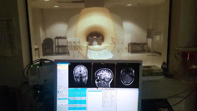 視覚障害者の脳が示す「打たれ強い脳」の無限の可能性2
