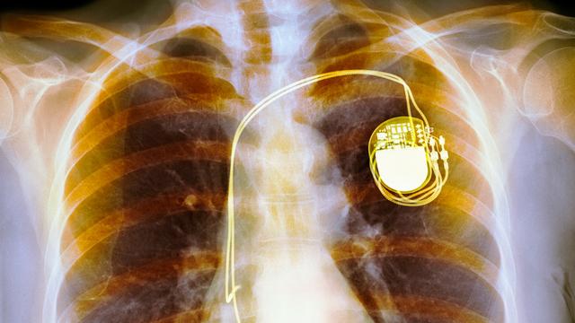 「その運動量は無理でしょ」心臓ペースメーカーのデータが犯罪の立証に使われる