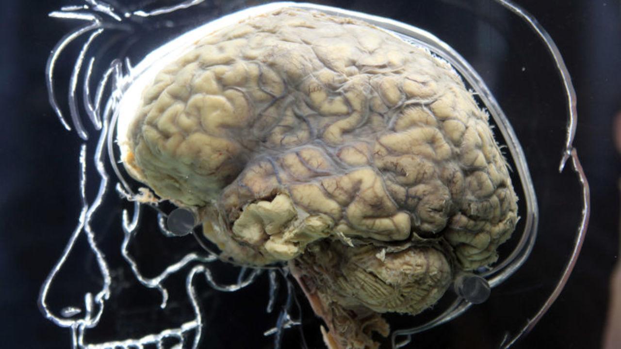 精神疾患は、やっぱり遺伝に関係があった?