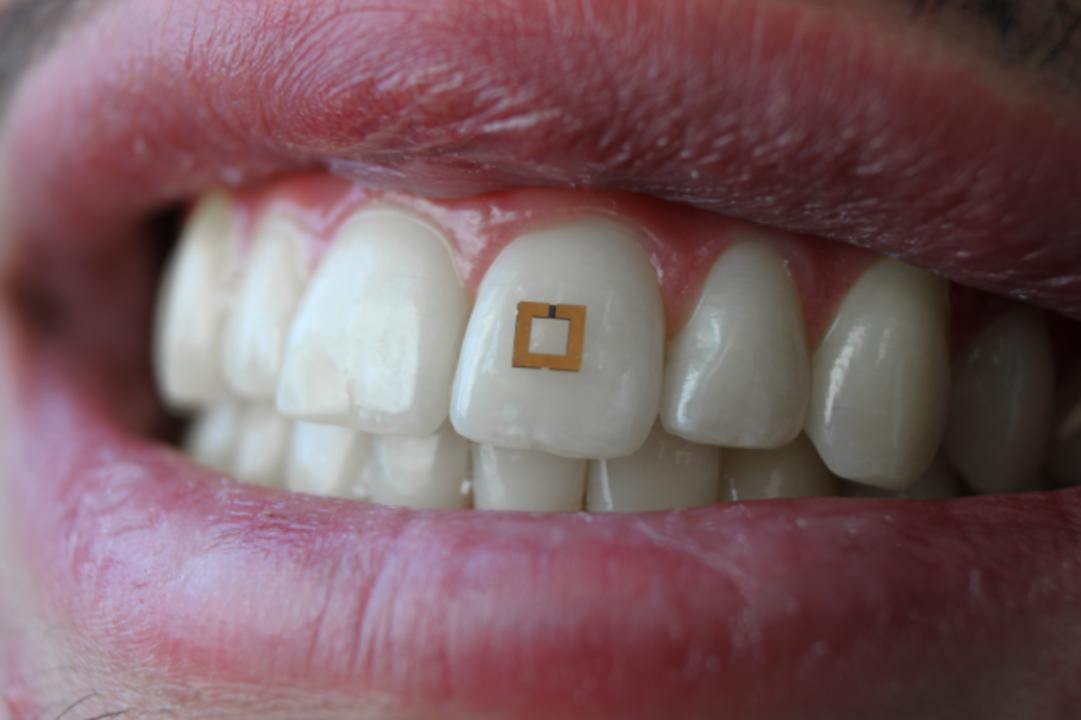 もうズルできない。歯に貼り付けるセンサーで、食べたものぜーんぶトラッキングする未来