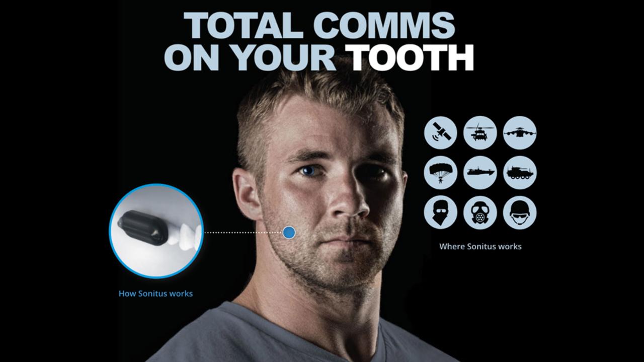 歯に装着する謎の通話デバイス、ペンタゴンから多額の資金を調達