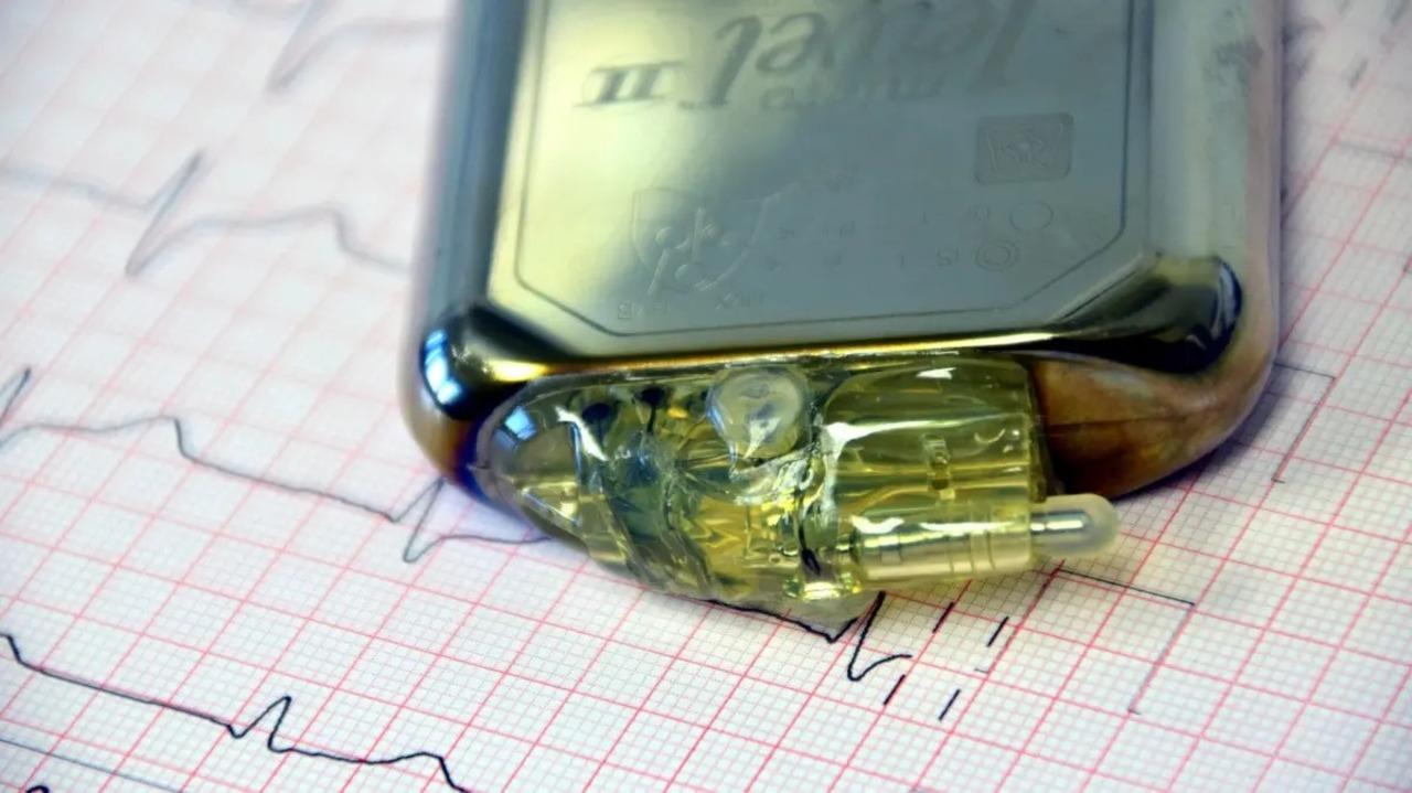寿命は50年。ロシアが超長持ちする電池を再開発(原子力で)