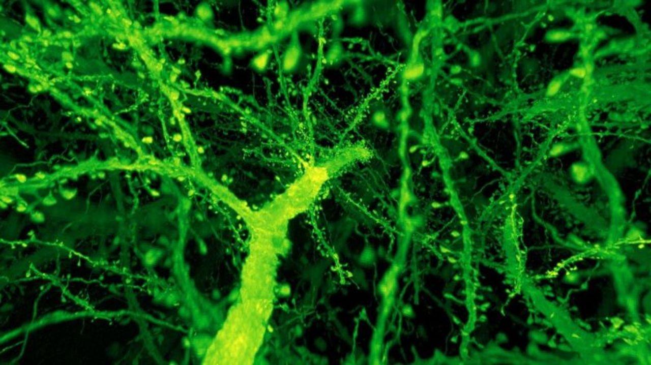 ちいさなハエの脳をリアルに拡大、高解像度で観察する技術