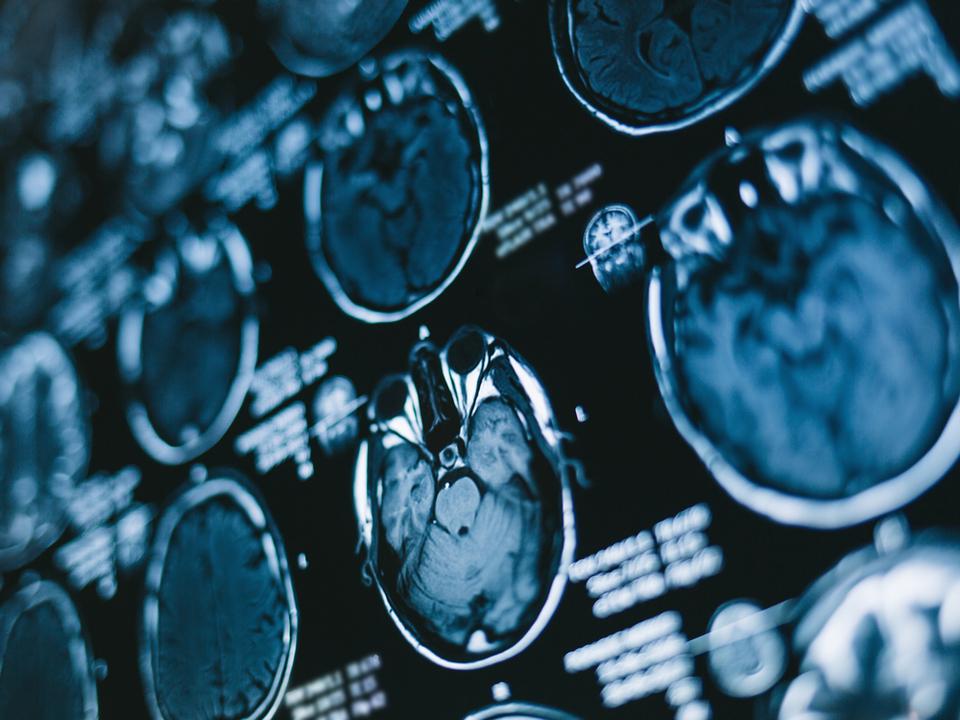 カラダの見た目も中身もみーんな画像に。医療を変えるバイオイメージング技術とは