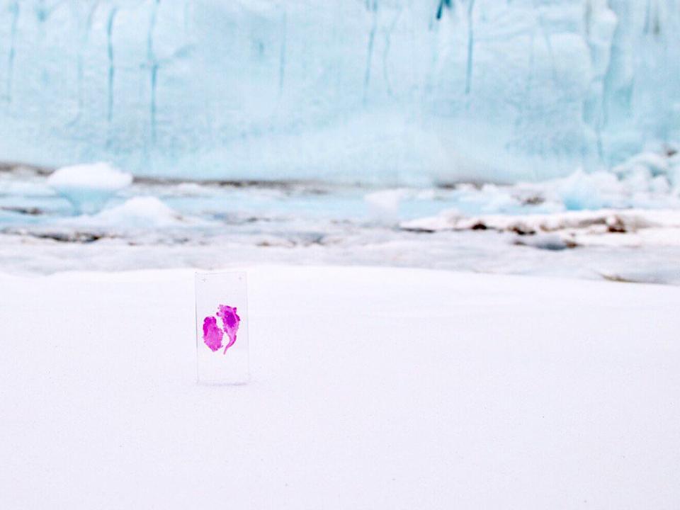 クソロボットの女王、自分の脳腫瘍を南極に送る